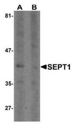 AP55413PU-N - Septin-1 (SEPT1)