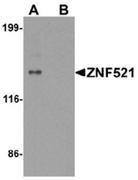 AP55421CP-N - ZNF521