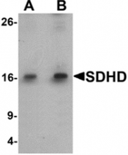 AP55422PU-N - SDHD