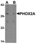 AP55428CP-N - PHOX2A