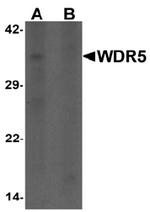 AP55430PU-N - WDR5 / BIG3
