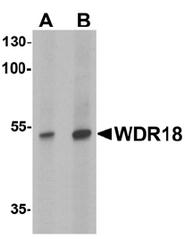 AP55432PU-N - WDR18