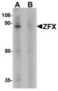 AP55433CP-N - ZFX