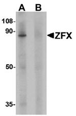 AP55433PU-N - ZFX