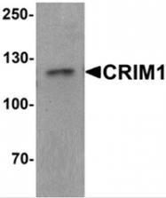 AP55436PU-N - CRIM1