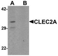 AP55437CP-N - CLEC2A