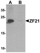 AP55438CP-N - ZFYVE21