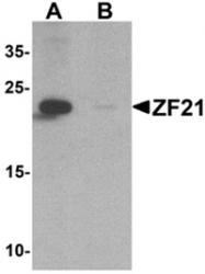 AP55438PU-N - ZFYVE21