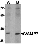 AP55441PU-N - VAMP-7 / SYBL1