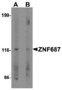 AP55449CP-N - ZNF687