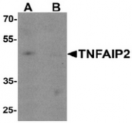 AP55469CP-N - TNFAIP2