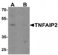 AP55469PU-N - TNFAIP2