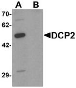 AP55470CP-N - DCP2