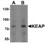 AP55471PU-N - KEAP1