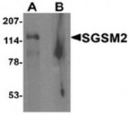 AP55475CP-N - SGSM2