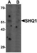 AP55478CP-N - SHQ1