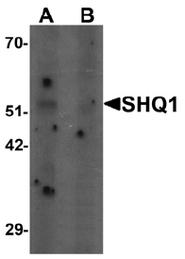 AP55478PU-N - SHQ1