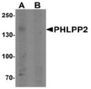 AP55482CP-N - PHLPP2