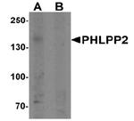 AP55482PU-N - PHLPP2