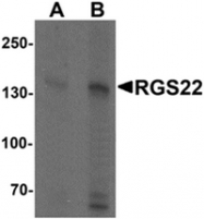 AP55491PU-N - RGS22