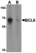 AP55495CP-N - Bcl-6