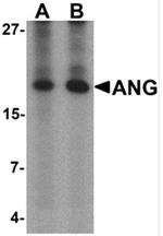 AP55496PU-N - Angiogenin