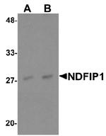 AP55498PU-N - NDFIP1