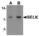 AP55499PU-N - Selenoprotein K (SELK)