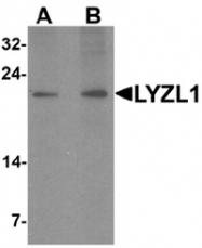 AP55505PU-N - LYZL1