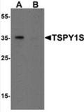 AP55516CP-N - TSPY1 / TSPY