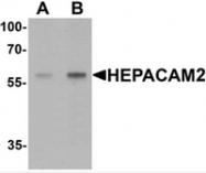 AP55520PU-N - HEPACAM2