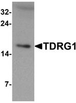 AP55521PU-N - TDRG1