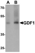 AP55526PU-N - GDF1