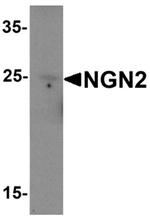 AP55527PU-N - Neurogenin 2