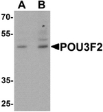 AP55530PU-N - POU3F2