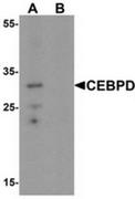 AP55534CP-N - CEBPD