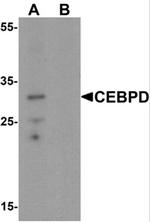 AP55534PU-N - CEBPD