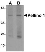 AP55535PU-N - PELI1