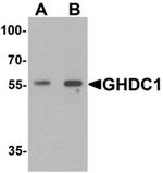 AP55536PU-N - GHDC