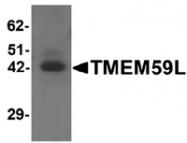 AP55539PU-N - TMEM59L