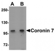 AP55544PU-N - Coronin 7