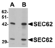 AP55550PU-N - SEC62 / TLOC1