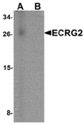 AP55561CP-N - ECRG-2