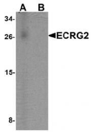 AP55561PU-N - ECRG-2