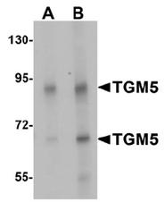 AP55563PU-N - Transglutaminase-5 (TGM5)