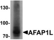 AP55572PU-N - AFAP1L