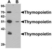 AP55579CP-N - TMPO / LAP2 alpha