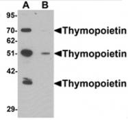 AP55579PU-N - TMPO / LAP2 alpha