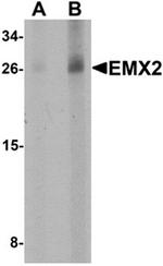 AP55582PU-N - EMX2