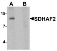 AP55591CP-N - PGL2 / SDHAF2